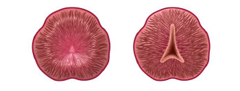 Before and after graphics of the reshaped prostate following treatment with the iTind device.