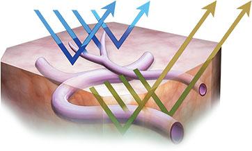 Narrow Band Imaging Olympus America Medical